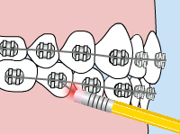 Emergency Home Care for Braces